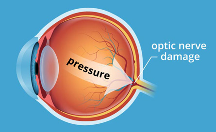 Damage from elevated intraocular pressure