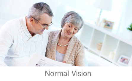Vision without Glaucoma
